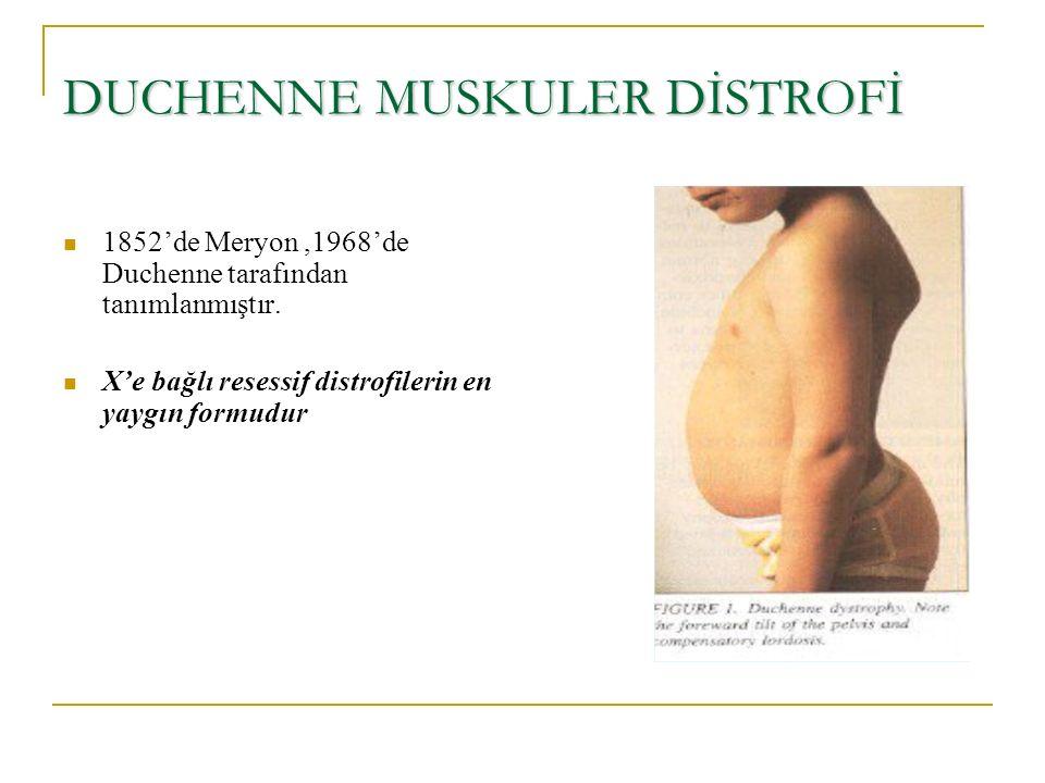 DUCHENNE MUSKULER DİSTROFİ 1852'de Meryon,1968'de Duchenne tarafından tanımlanmıştır. X'e bağlı resessif distrofilerin en yaygın formudur