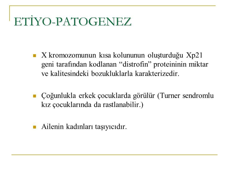 ETİYO-PATOGENEZ X kromozomunun kısa kolununun oluşturduğu Xp21 geni tarafından kodlanan distrofin proteininin miktar ve kalitesindeki bozukluklarla karakterizedir.