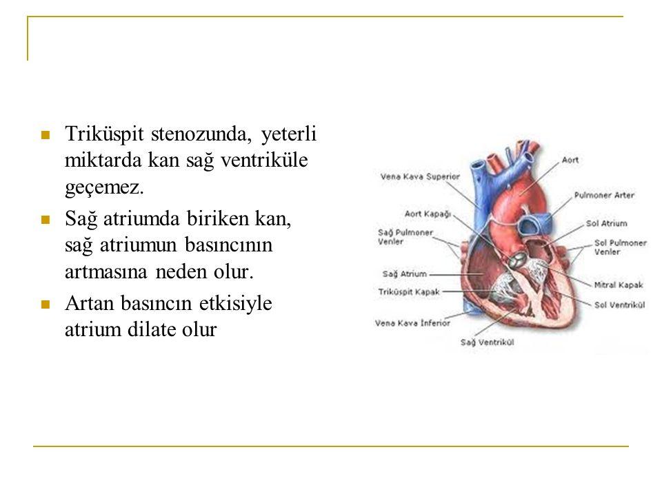 Triküspit stenozunda, yeterli miktarda kan sağ ventriküle geçemez. Sağ atriumda biriken kan, sağ atriumun basıncının artmasına neden olur. Artan basın