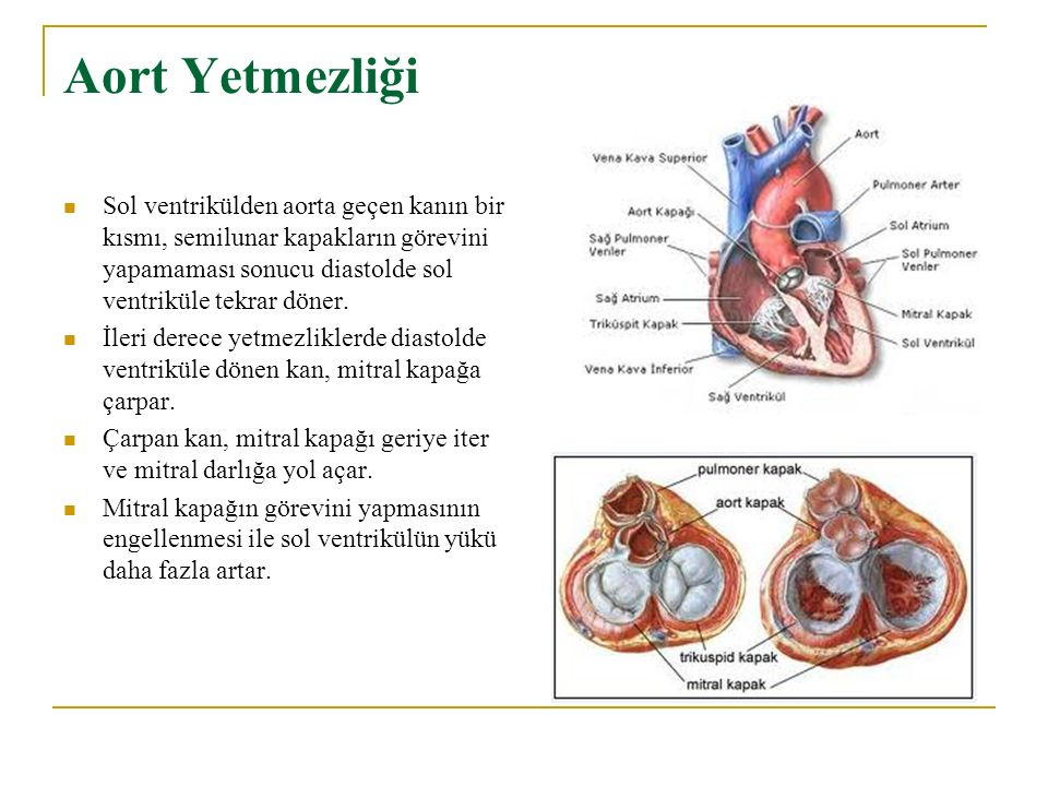 Aort Yetmezliği Sol ventrikülden aorta geçen kanın bir kısmı, semilunar kapakların görevini yapamaması sonucu diastolde sol ventriküle tekrar döner. İ
