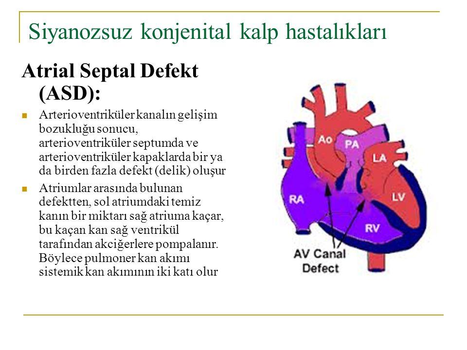 Siyanozsuz konjenital kalp hastalıkları Atrial Septal Defekt (ASD): Arterioventriküler kanalın gelişim bozukluğu sonucu, arterioventriküler septumda ve arterioventriküler kapaklarda bir ya da birden fazla defekt (delik) oluşur Atriumlar arasında bulunan defektten, sol atriumdaki temiz kanın bir miktarı sağ atriuma kaçar, bu kaçan kan sağ ventrikül tarafından akciğerlere pompalanır.
