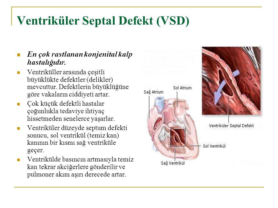 Ventriküler Septal Defekt (VSD) En çok rastlanan konjenital kalp hastalığıdır. Ventriküller arasında çeşitli büyüklükte defektler (delikler) mevcuttur