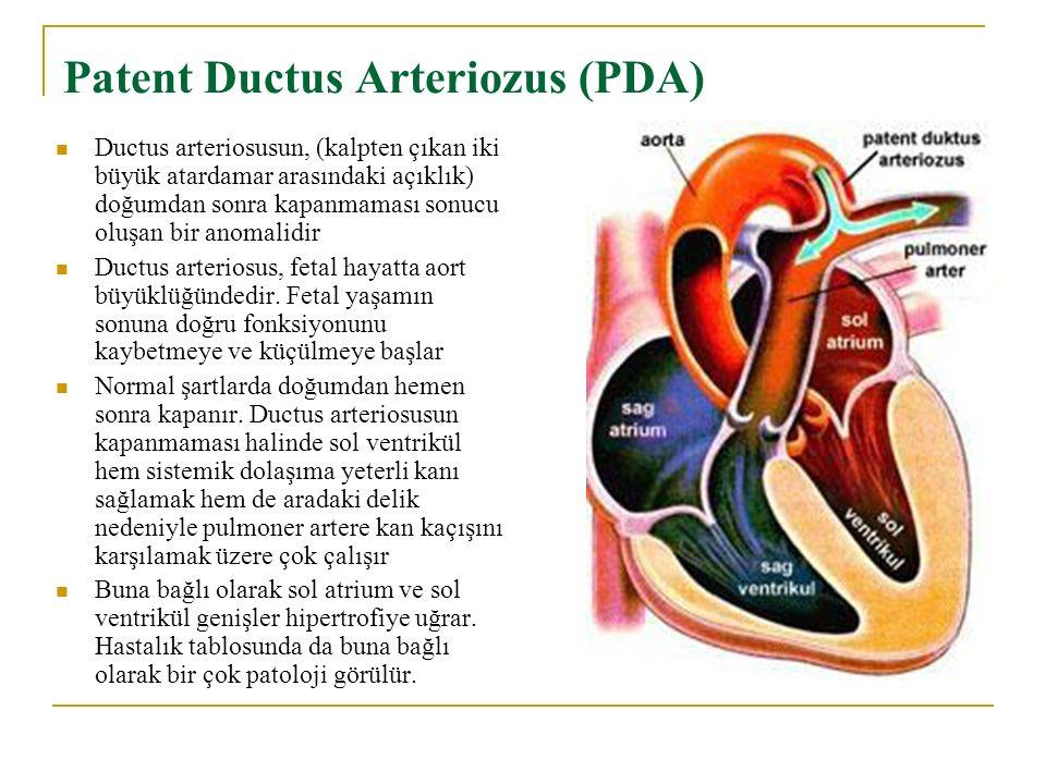 Patent Ductus Arteriozus (PDA) Ductus arteriosusun, (kalpten çıkan iki büyük atardamar arasındaki açıklık) doğumdan sonra kapanmaması sonucu oluşan bir anomalidir Ductus arteriosus, fetal hayatta aort büyüklüğündedir.