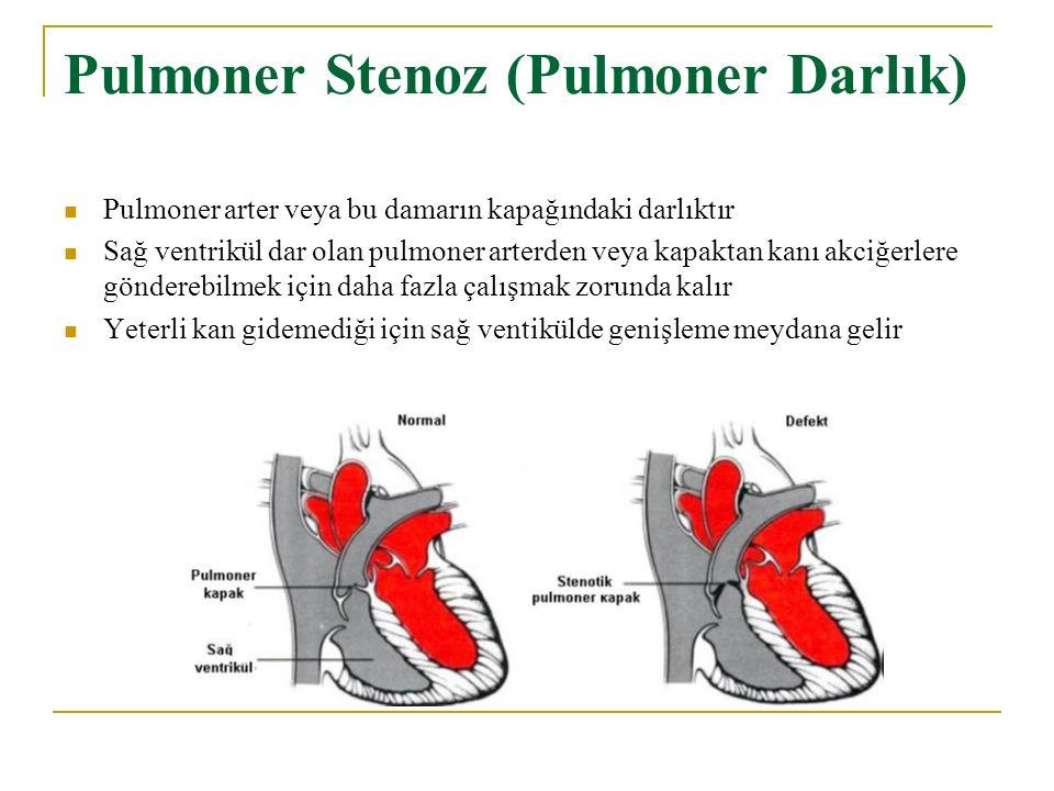 Pulmoner Stenoz (Pulmoner Darlık) Pulmoner arter veya bu damarın kapağındaki darlıktır Sağ ventrikül dar olan pulmoner arterden veya kapaktan kanı akciğerlere gönderebilmek için daha fazla çalışmak zorunda kalır Yeterli kan gidemediği için sağ ventikülde genişleme meydana gelir