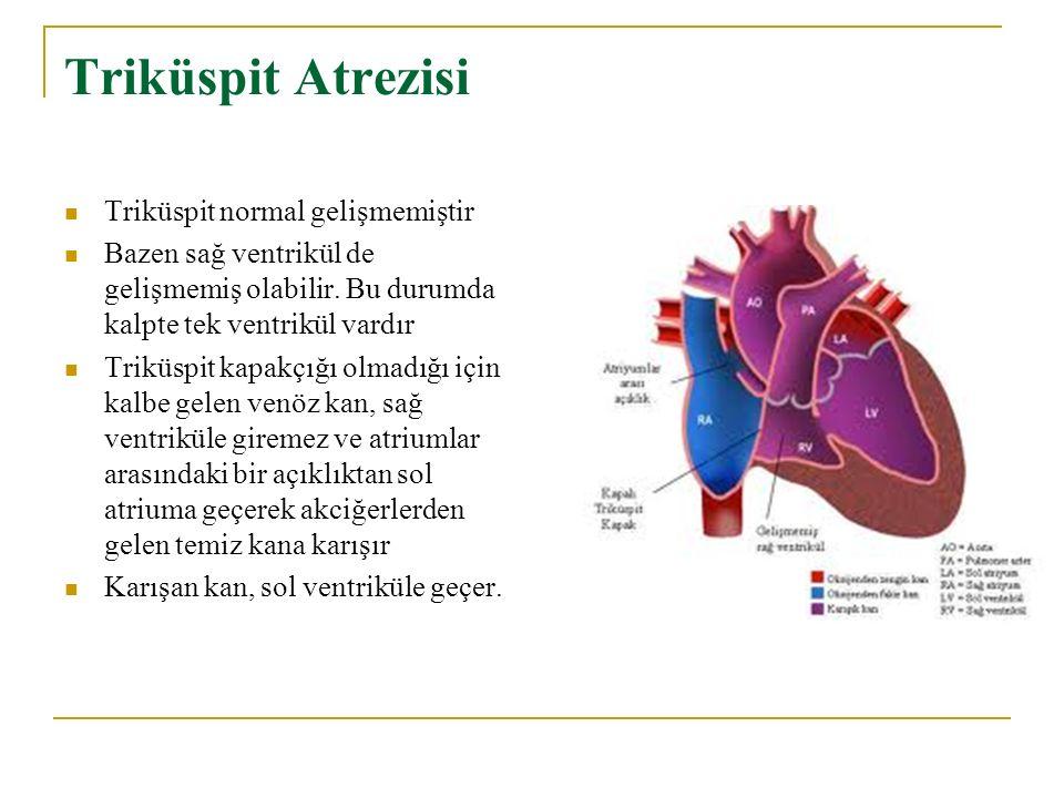 Triküspit Atrezisi Triküspit normal gelişmemiştir Bazen sağ ventrikül de gelişmemiş olabilir. Bu durumda kalpte tek ventrikül vardır Triküspit kapakçı