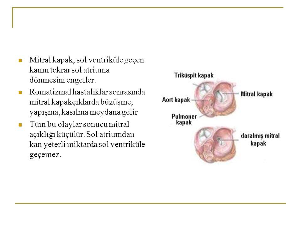 Mitral kapak, sol ventriküle geçen kanın tekrar sol atriuma dönmesini engeller. Romatizmal hastalıklar sonrasında mitral kapakçıklarda büzüşme, yapışm