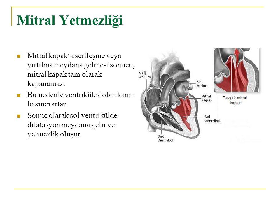 Mitral Yetmezliği Mitral kapakta sertleşme veya yırtılma meydana gelmesi sonucu, mitral kapak tam olarak kapanamaz. Bu nedenle ventriküle dolan kanın