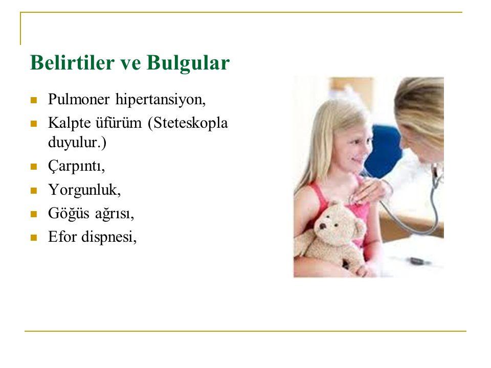 Belirtiler ve Bulgular Pulmoner hipertansiyon, Kalpte üfürüm (Steteskopla duyulur.) Çarpıntı, Yorgunluk, Göğüs ağrısı, Efor dispnesi,