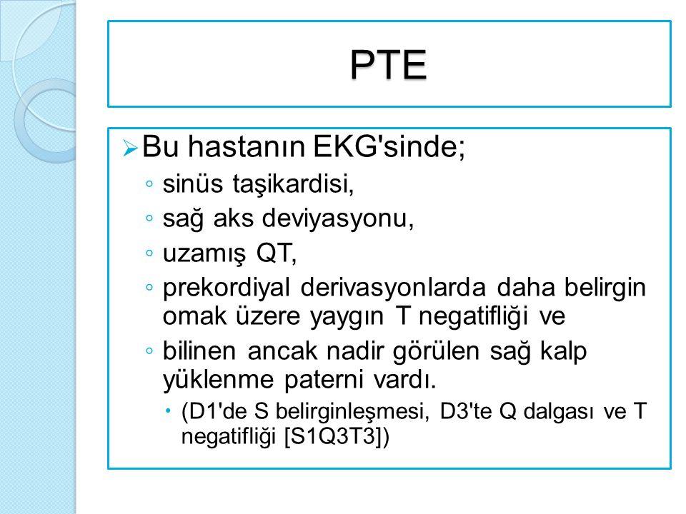 PTE  Bu hastanın EKG sinde; ◦ sinüs taşikardisi, ◦ sağ aks deviyasyonu, ◦ uzamış QT, ◦ prekordiyal derivasyonlarda daha belirgin omak üzere yaygın T negatifliği ve ◦ bilinen ancak nadir görülen sağ kalp yüklenme paterni vardı.