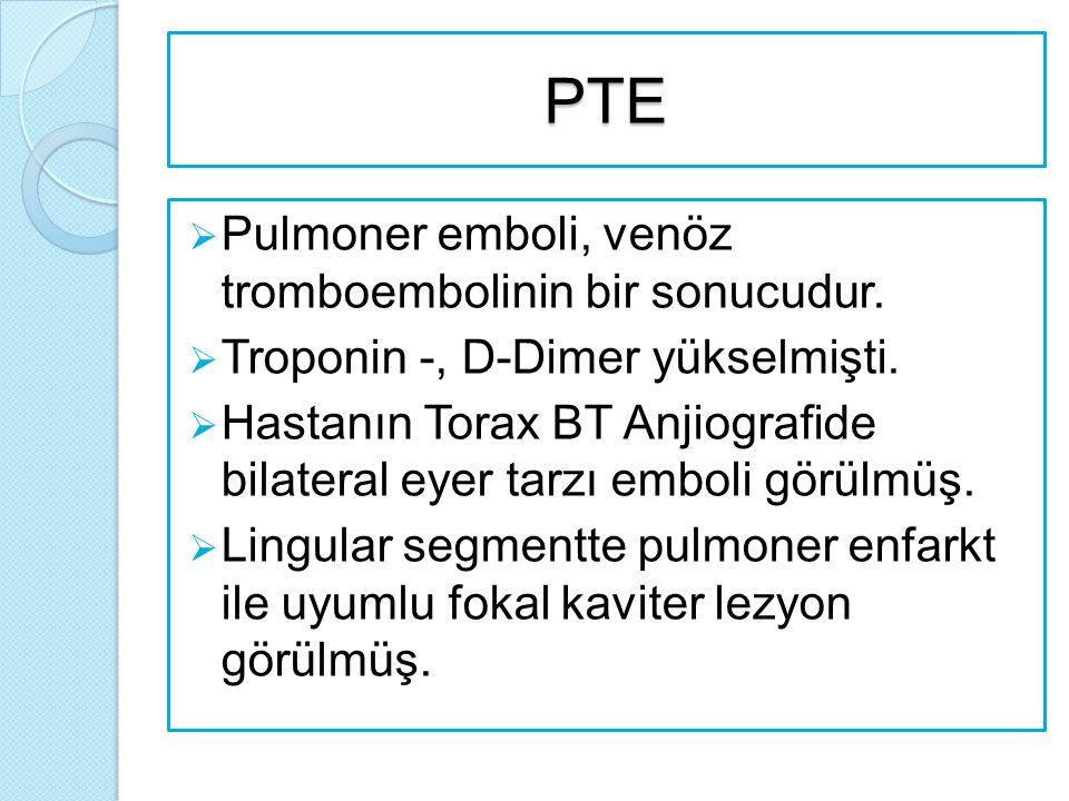 PTE  Pulmoner emboli, venöz tromboembolinin bir sonucudur.