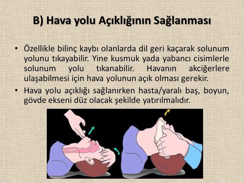 B) Hava yolu Açıklığının Sağlanması Özellikle bilinç kaybı olanlarda dil geri kaçarak solunum yolunu tıkayabilir.
