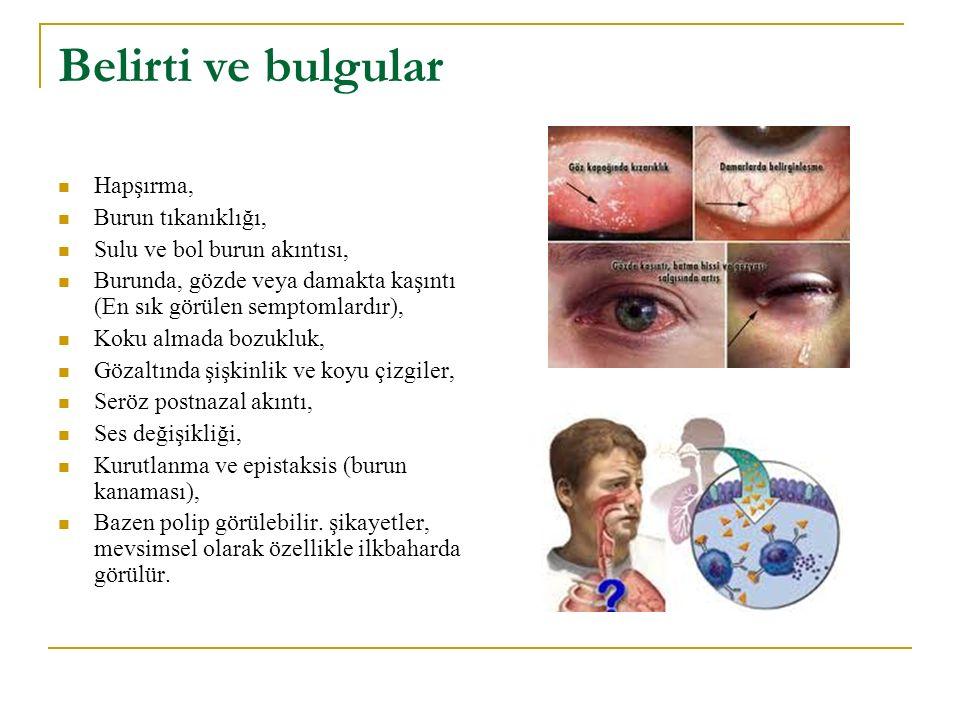 Belirti ve bulgular Hapşırma, Burun tıkanıklığı, Sulu ve bol burun akıntısı, Burunda, gözde veya damakta kaşıntı (En sık görülen semptomlardır), Koku