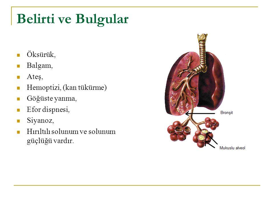 Belirti ve Bulgular Öksürük, Balgam, Ateş, Hemoptizi, (kan tükürme) Göğüste yanma, Efor dispnesi, Siyanoz, Hırıltılı solunum ve solunum güçlüğü vardır