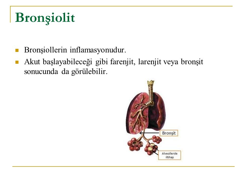 Bronşiolit Bronşiollerin inflamasyonudur. Akut başlayabileceği gibi farenjit, larenjit veya bronşit sonucunda da görülebilir.
