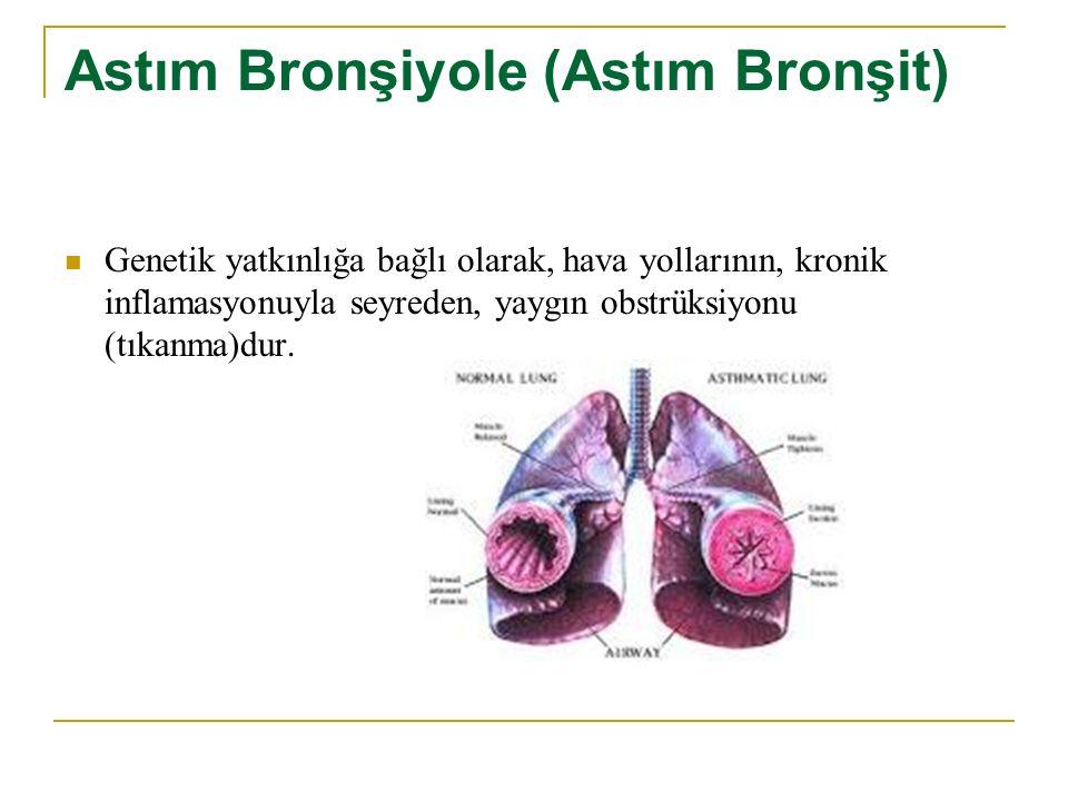 Astım Bronşiyole (Astım Bronşit) Genetik yatkınlığa bağlı olarak, hava yollarının, kronik inflamasyonuyla seyreden, yaygın obstrüksiyonu (tıkanma)dur.