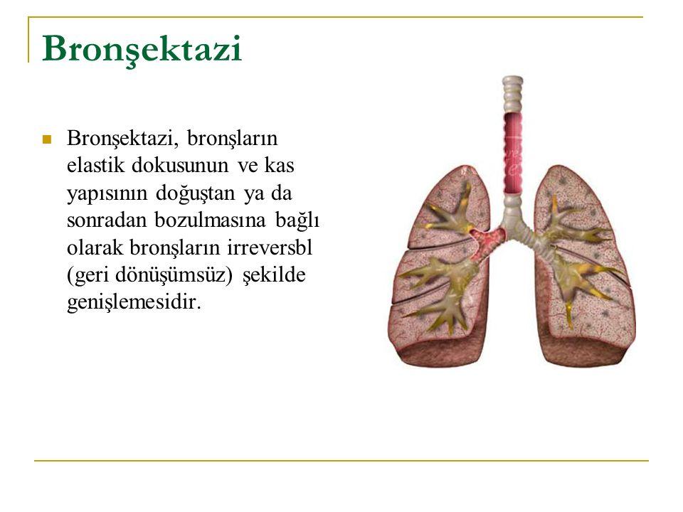 Bronşektazi Bronşektazi, bronşların elastik dokusunun ve kas yapısının doğuştan ya da sonradan bozulmasına bağlı olarak bronşların irreversbl (geri dö