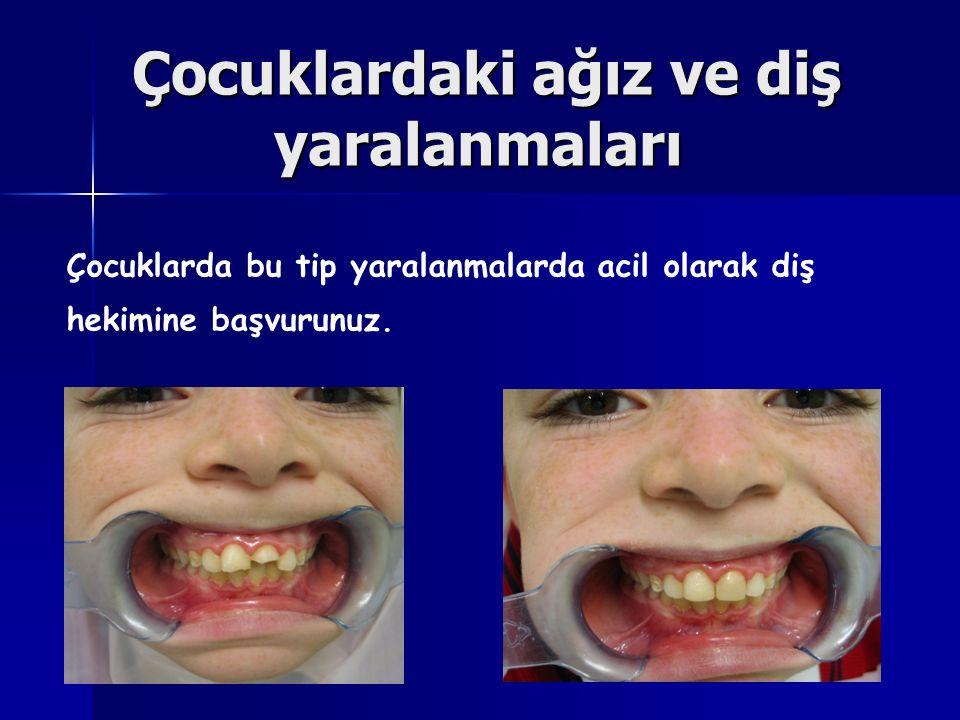 Çocuklardaki ağız ve diş yaralanmaları Çocuklardaki ağız ve diş yaralanmaları Çocuklarda bu tip yaralanmalarda acil olarak diş hekimine başvurunuz.