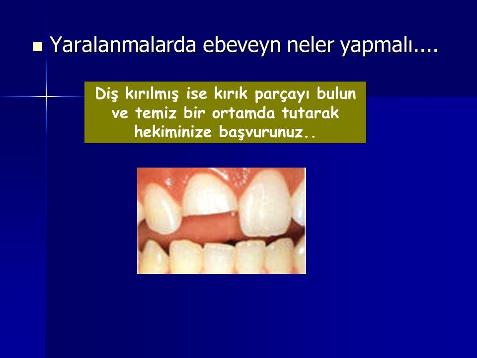 Diş kırılmış ise kırık parçayı bulun ve temiz bir ortamda tutarak hekiminize başvurunuz.. Yaralanmalarda ebeveyn neler yapmalı.... Yaralanmalarda ebev