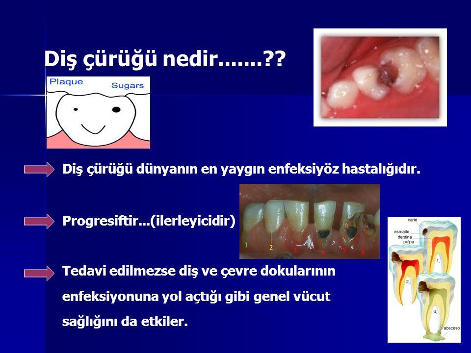 Diş çürüğü nedir.......?? Diş çürüğü dünyanın en yaygın enfeksiyöz hastalığıdır. Progresiftir...(ilerleyicidir) Tedavi edilmezse diş ve çevre dokuları