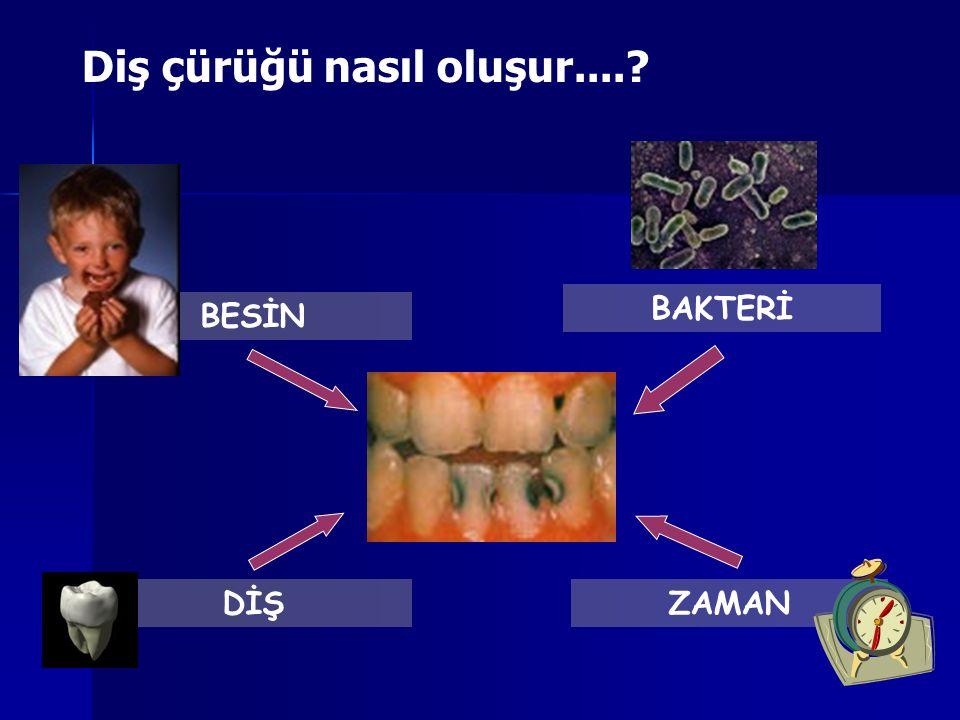 Diş çürüğü nasıl oluşur....? BESİN BAKTERİ DİŞZAMAN