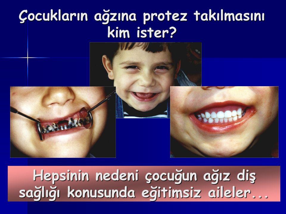 Çocukların ağzına protez takılmasını kim ister.