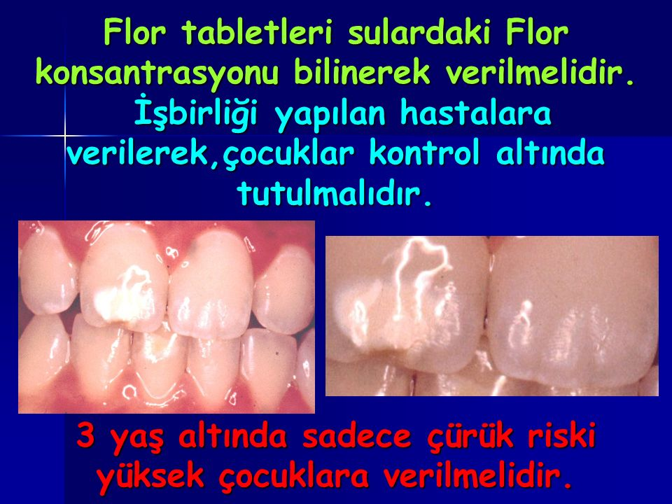 Flor tabletleri sulardaki Flor konsantrasyonu bilinerek verilmelidir.