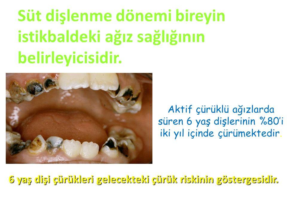 Aktif çürüklü ağızlarda süren 6 yaş dişlerinin %80'i iki yıl içinde çürümektedir. 6 yaş dişi çürükleri gelecekteki çürük riskinin göstergesidir. Süt d