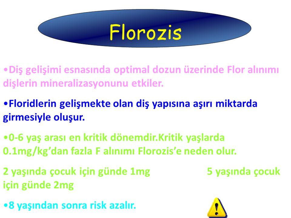 Florozis Diş gelişimi esnasında optimal dozun üzerinde Flor alınımı dişlerin mineralizasyonunu etkiler. Floridlerin gelişmekte olan diş yapısına aşırı
