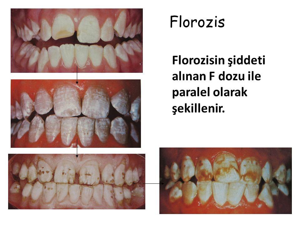 Florozis Florozisin şiddeti alınan F dozu ile paralel olarak şekillenir.