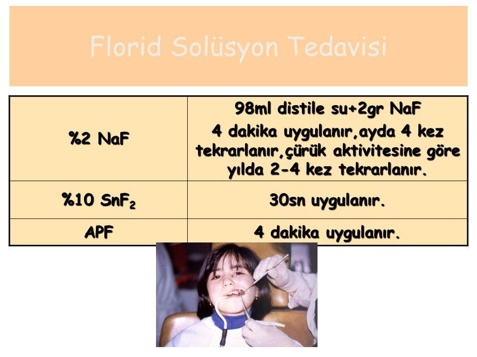 Florid Solüsyon Tedavisi %2 NaF 98ml distile su+2gr NaF 4 dakika uygulanır,ayda 4 kez tekrarlanır,çürük aktivitesine göre yılda 2-4 kez tekrarlanır. %