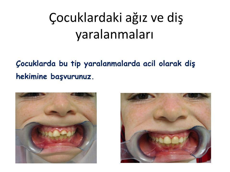 Çocuklardaki ağız ve diş yaralanmaları Çocuklarda bu tip yaralanmalarda acil olarak diş hekimine başvurunuz.