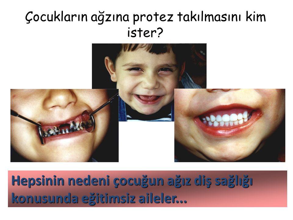 Çocukların ağzına protez takılmasını kim ister? Hepsinin nedeni çocuğun ağız diş sağlığı konusunda eğitimsiz aileler...