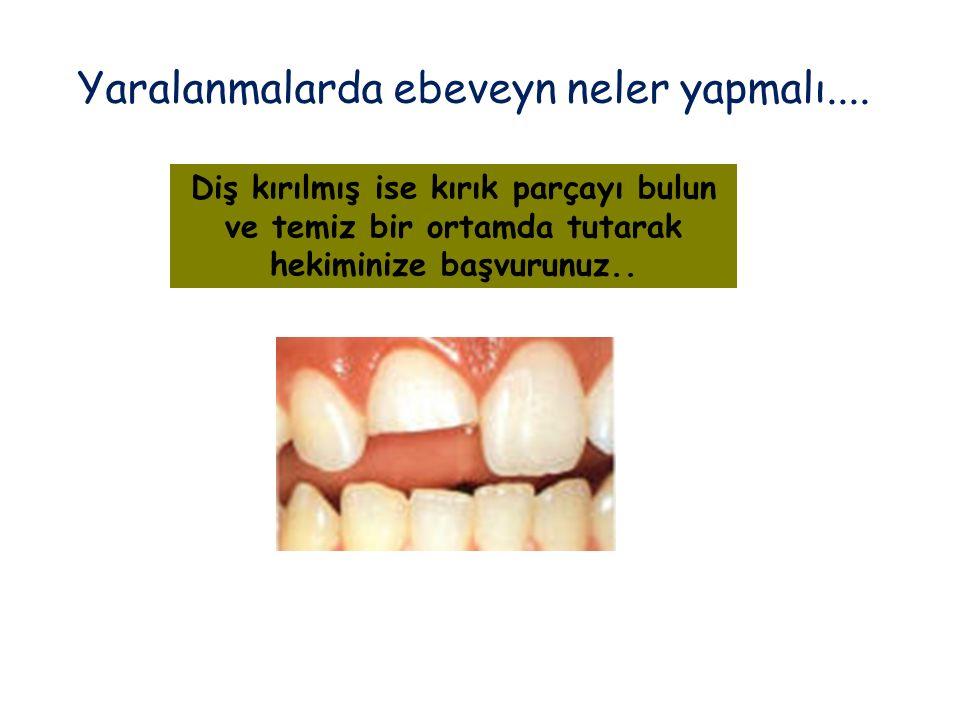 Diş kırılmış ise kırık parçayı bulun ve temiz bir ortamda tutarak hekiminize başvurunuz.. Yaralanmalarda ebeveyn neler yapmalı....