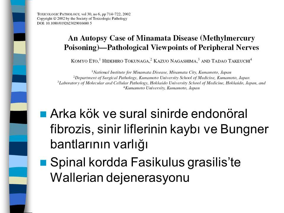 Arka kök ve sural sinirde endonöral fibrozis, sinir liflerinin kaybı ve Bungner bantlarının varlığı Spinal kordda Fasikulus grasilis'te Wallerian dejenerasyonu
