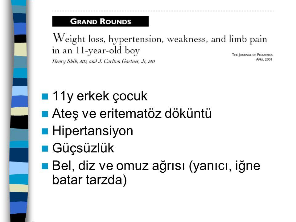 11y erkek çocuk Ateş ve eritematöz döküntü Hipertansiyon Güçsüzlük Bel, diz ve omuz ağrısı (yanıcı, iğne batar tarzda)