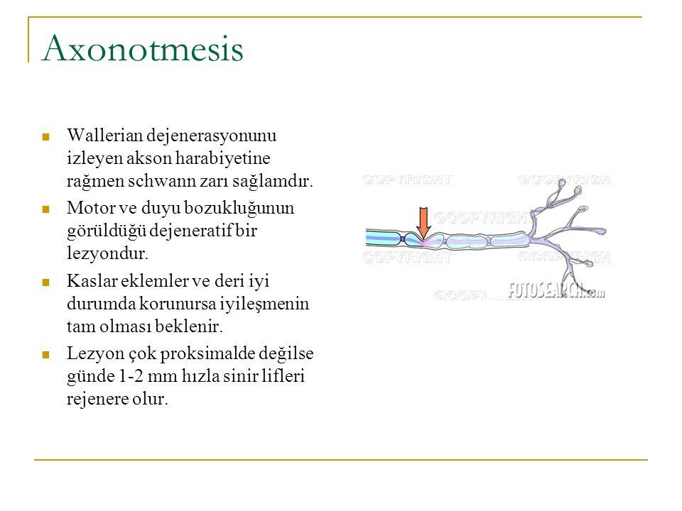 Axonotmesis Wallerian dejenerasyonunu izleyen akson harabiyetine rağmen schwann zarı sağlamdır. Motor ve duyu bozukluğunun görüldüğü dejeneratif bir l