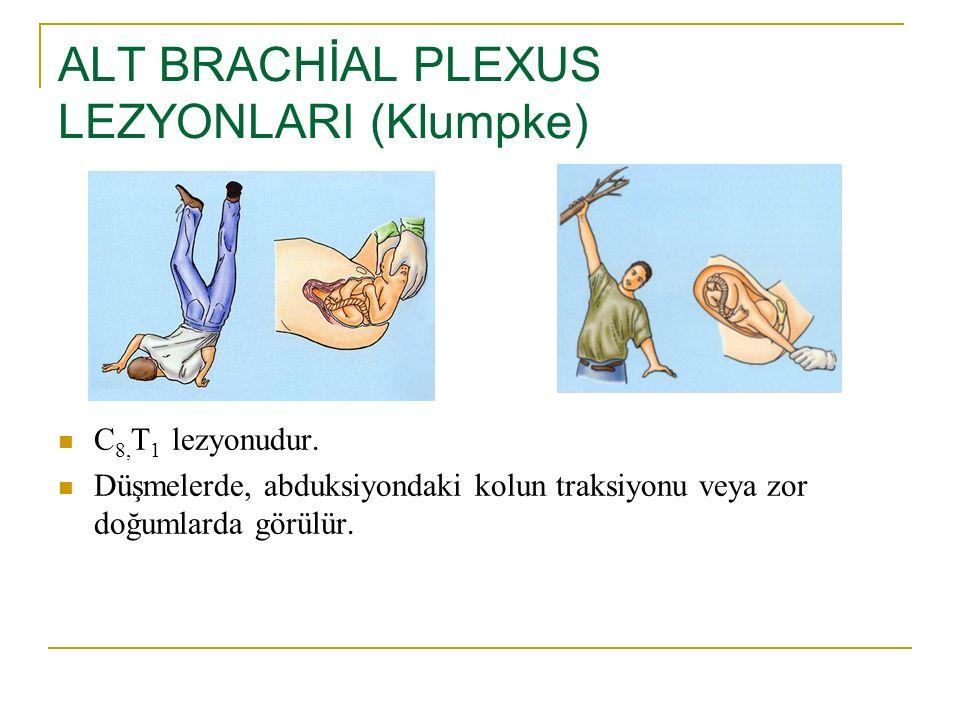 ALT BRACHİAL PLEXUS LEZYONLARI (Klumpke) C 8, T 1 lezyonudur. Düşmelerde, abduksiyondaki kolun traksiyonu veya zor doğumlarda görülür.