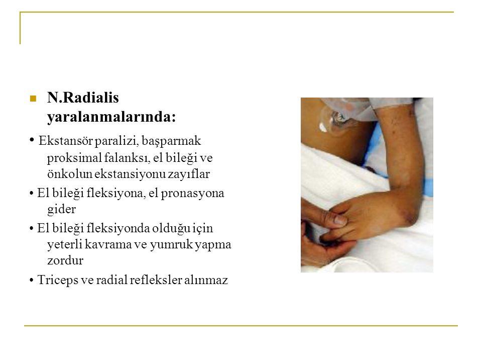 N.Radialis yaralanmalarında: Ekstansör paralizi, başparmak proksimal falanksı, el bileği ve önkolun ekstansiyonu zayıflar El bileği fleksiyona, el pronasyona gider El bileği fleksiyonda olduğu için yeterli kavrama ve yumruk yapma zordur Triceps ve radial refleksler alınmaz