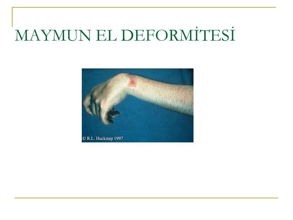 MAYMUN EL DEFORMİTESİ