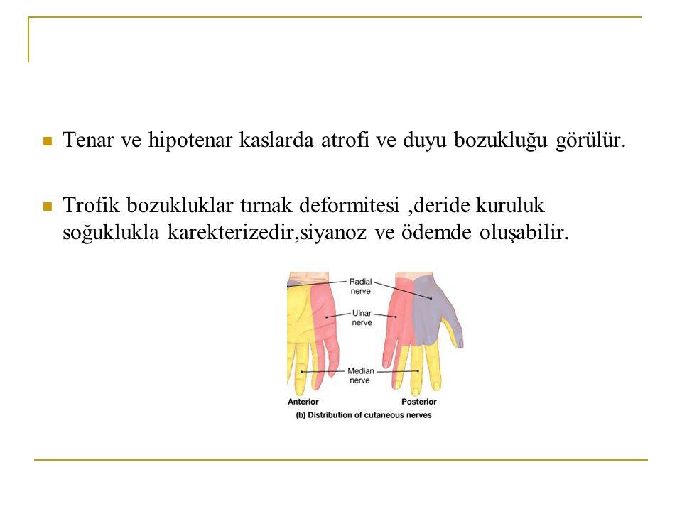 Tenar ve hipotenar kaslarda atrofi ve duyu bozukluğu görülür. Trofik bozukluklar tırnak deformitesi,deride kuruluk soğuklukla karekterizedir,siyanoz v