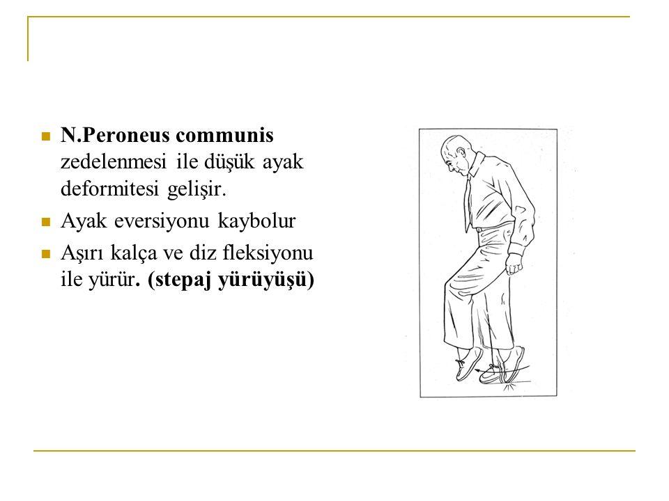 N.Peroneus communis zedelenmesi ile düşük ayak deformitesi gelişir. Ayak eversiyonu kaybolur Aşırı kalça ve diz fleksiyonu ile yürür. (stepaj yürüyüşü