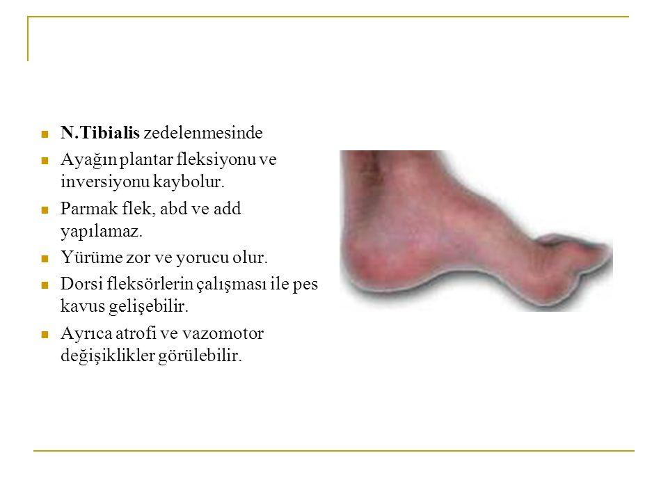 N.Tibialis zedelenmesinde Ayağın plantar fleksiyonu ve inversiyonu kaybolur. Parmak flek, abd ve add yapılamaz. Yürüme zor ve yorucu olur. Dorsi fleks