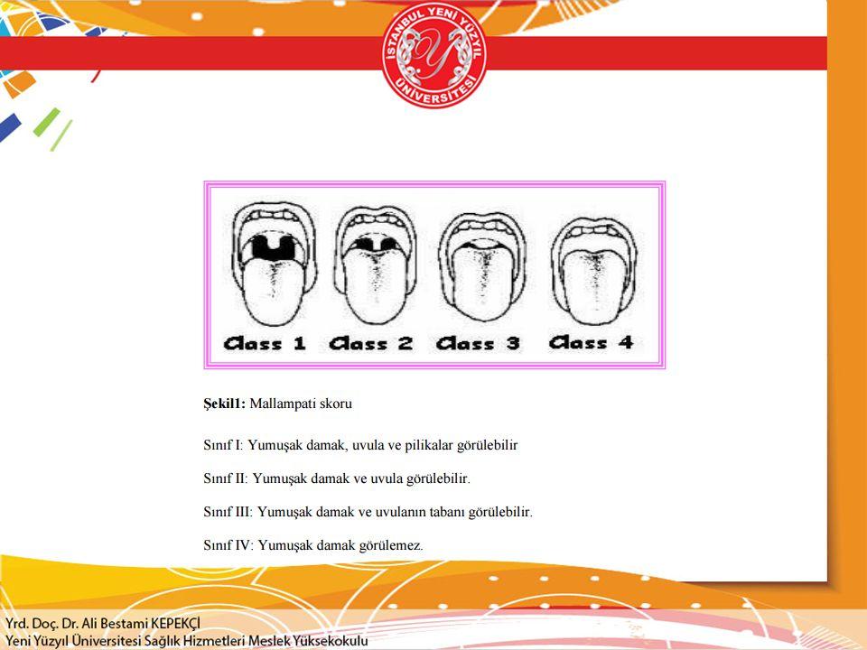 Havayolu Güvenliği  Kısa boyun, diş protezleri  Receding mandibula  Protruze maxiller kesici ön dişler  Kötü mandibuler mobilite  Mallampati klasifikasyonu