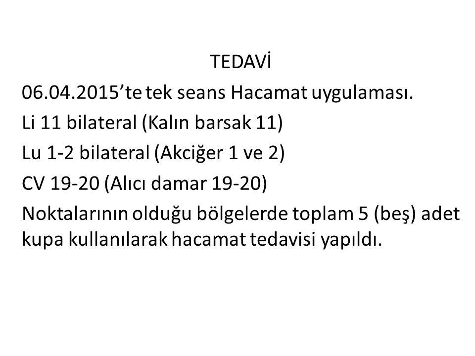 TEDAVİ 06.04.2015'te tek seans Hacamat uygulaması. Li 11 bilateral (Kalın barsak 11) Lu 1-2 bilateral (Akciğer 1 ve 2) CV 19-20 (Alıcı damar 19-20) No