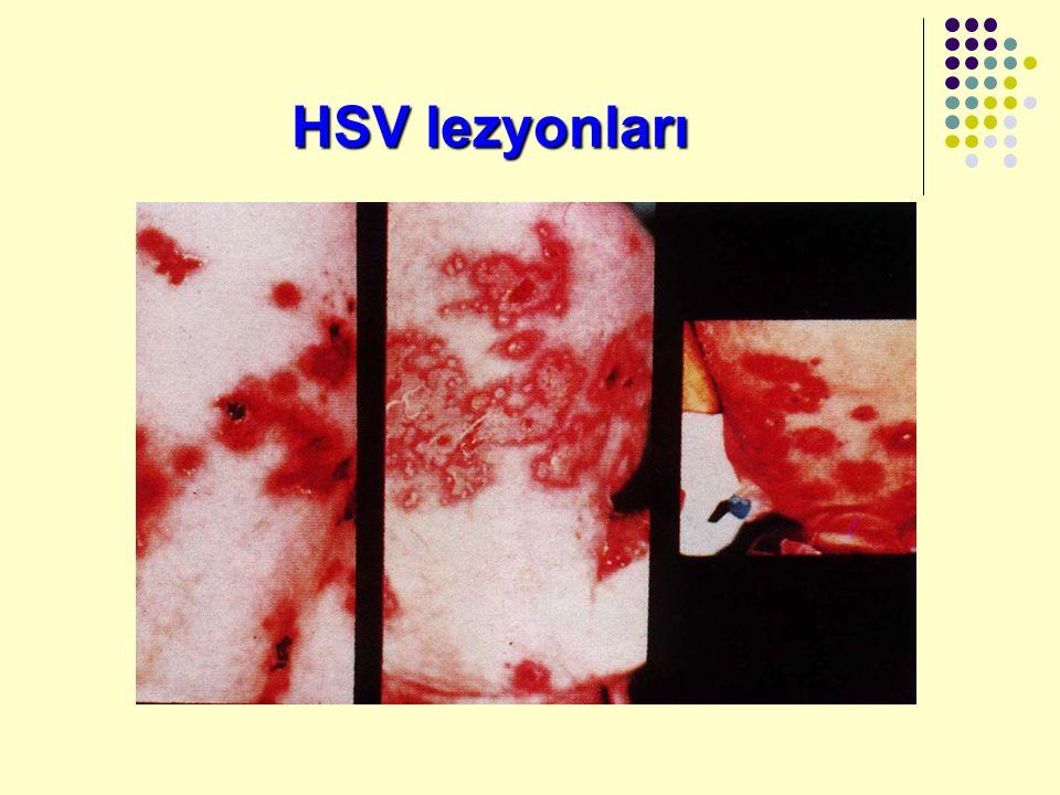 HSV lezyonları