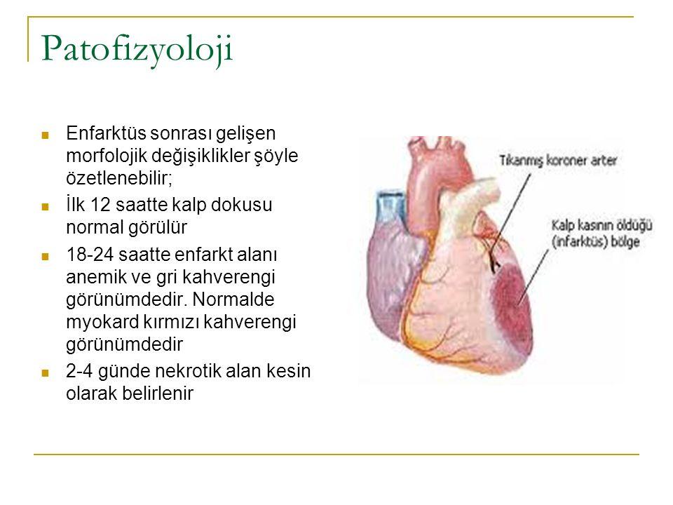 MI en çok sol ventrikülün ön duvarında apekse yakın bölgede gelişir MI'nün ikinci derecede sık görüldüğü bölge sol ventrikülün arka duvarında mitral kapağa yakın olan bölgededir.