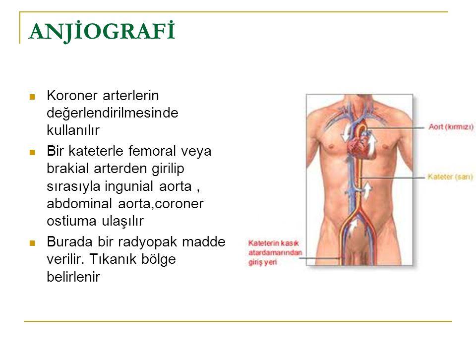 Cerrahi Yaklaşım Olarak Anjioplasti BY Pass Aterektomi Stent uygulanır
