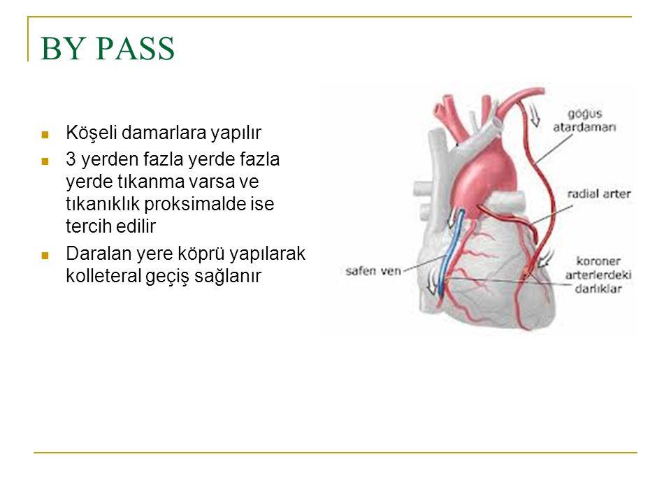 ATEREKTOMİ Koroner arteri tıkayan plaka kateter yardımı ile koroner artere ulaştırılan küçük bıçaklarla traş edilir.