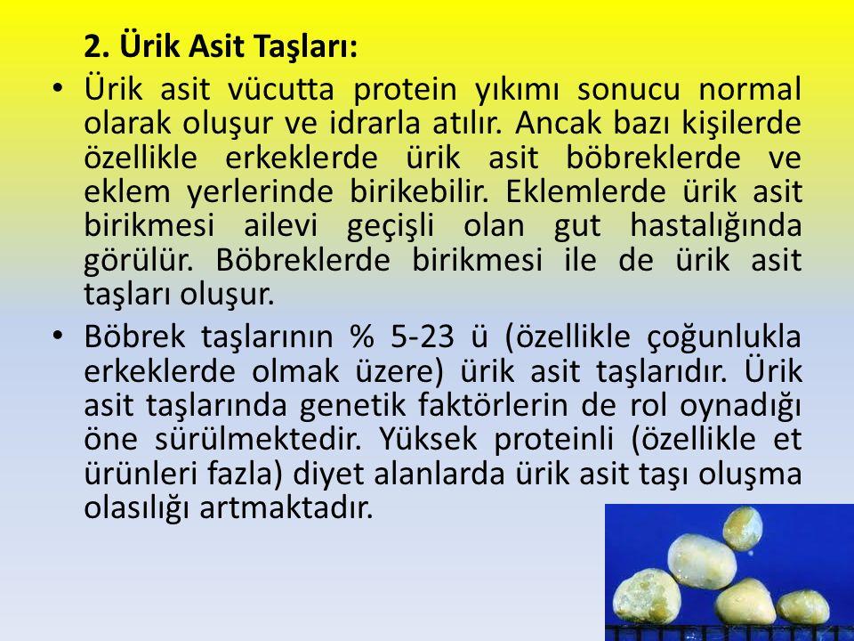 2. Ürik Asit Taşları: Ürik asit vücutta protein yıkımı sonucu normal olarak oluşur ve idrarla atılır. Ancak bazı kişilerde özellikle erkeklerde ürik a