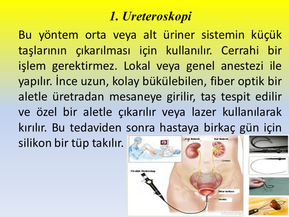 1. Ureteroskopi Bu yöntem orta veya alt üriner sistemin küçük taşlarının çıkarılması için kullanılır. Cerrahi bir işlem gerektirmez. Lokal veya genel